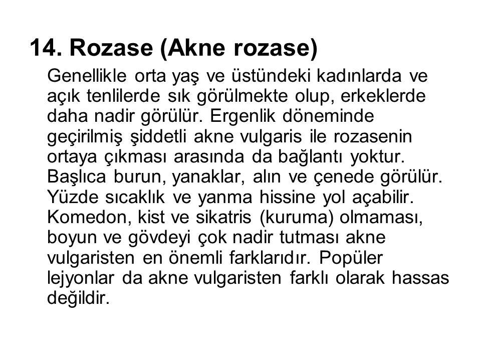 14. Rozase (Akne rozase) Genellikle orta yaş ve üstündeki kadınlarda ve açık tenlilerde sık görülmekte olup, erkeklerde daha nadir görülür. Ergenlik d