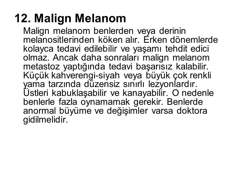 12. Malign Melanom Malign melanom benlerden veya derinin melanositlerinden köken alır. Erken dönemlerde kolayca tedavi edilebilir ve yaşamı tehdit edi