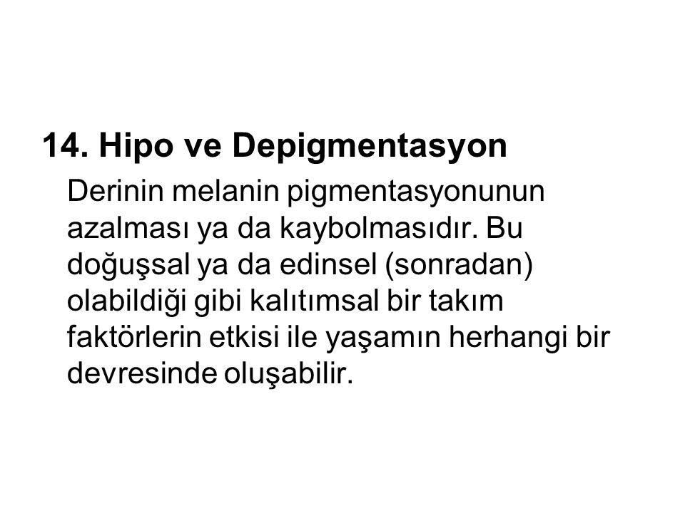 14. Hipo ve Depigmentasyon Derinin melanin pigmentasyonunun azalması ya da kaybolmasıdır. Bu doğuşsal ya da edinsel (sonradan) olabildiği gibi kalıtım