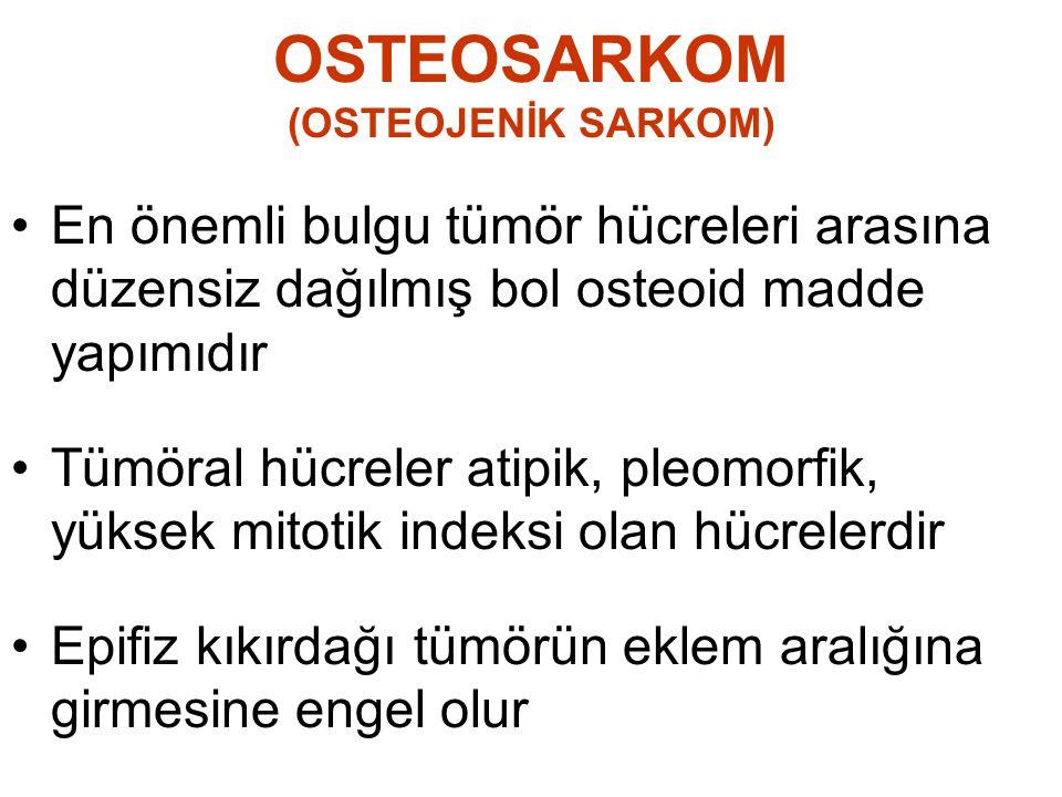 OSTEOSARKOM (OSTEOJENİK SARKOM) •En önemli bulgu tümör hücreleri arasına düzensiz dağılmış bol osteoid madde yapımıdır •Tümöral hücreler atipik, pleom