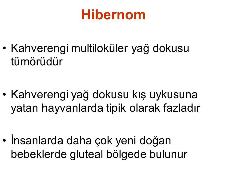 Hibernom •Kahverengi multiloküler yağ dokusu tümörüdür •Kahverengi yağ dokusu kış uykusuna yatan hayvanlarda tipik olarak fazladır •İnsanlarda daha ço
