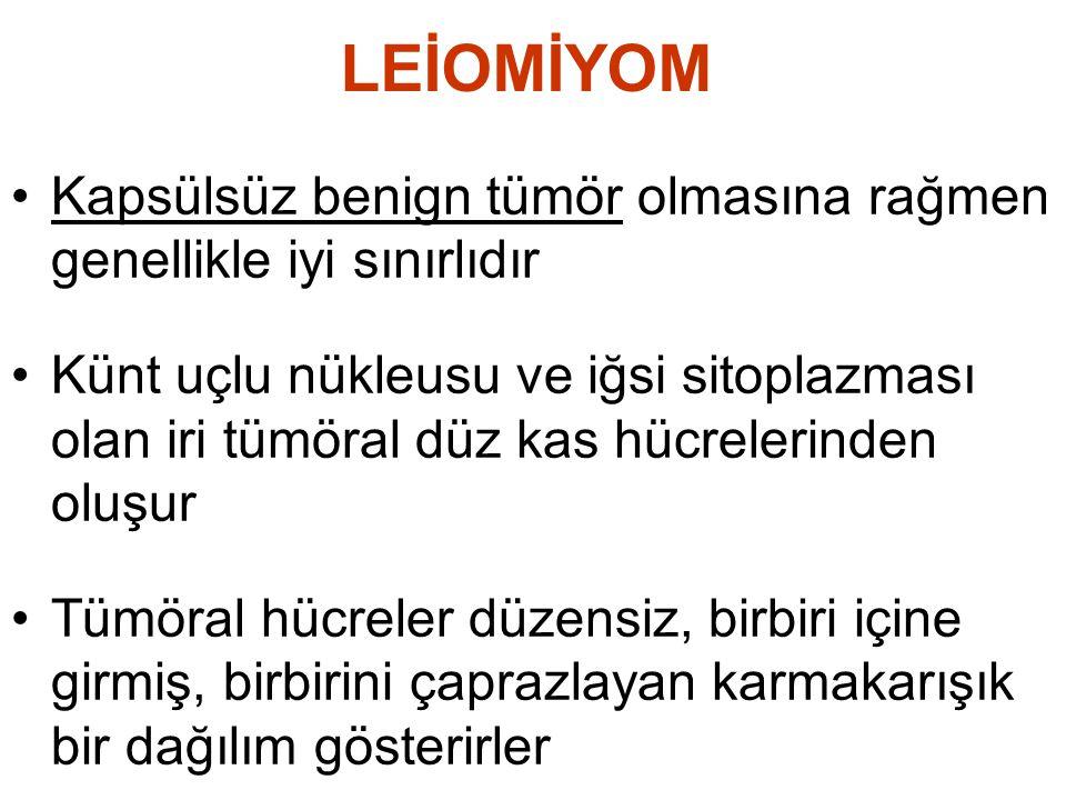 LEİOMİYOM •Kapsülsüz benign tümör olmasına rağmen genellikle iyi sınırlıdır •Künt uçlu nükleusu ve iğsi sitoplazması olan iri tümöral düz kas hücreler