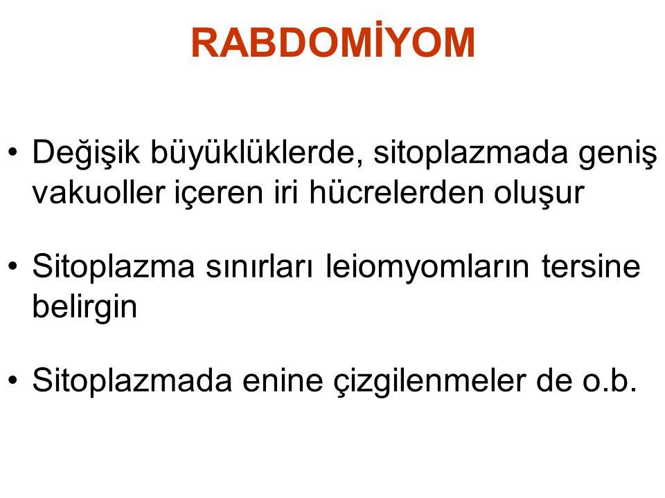 RABDOMİYOM •Değişik büyüklüklerde, sitoplazmada geniş vakuoller içeren iri hücrelerden oluşur •Sitoplazma sınırları leiomyomların tersine belirgin •Si