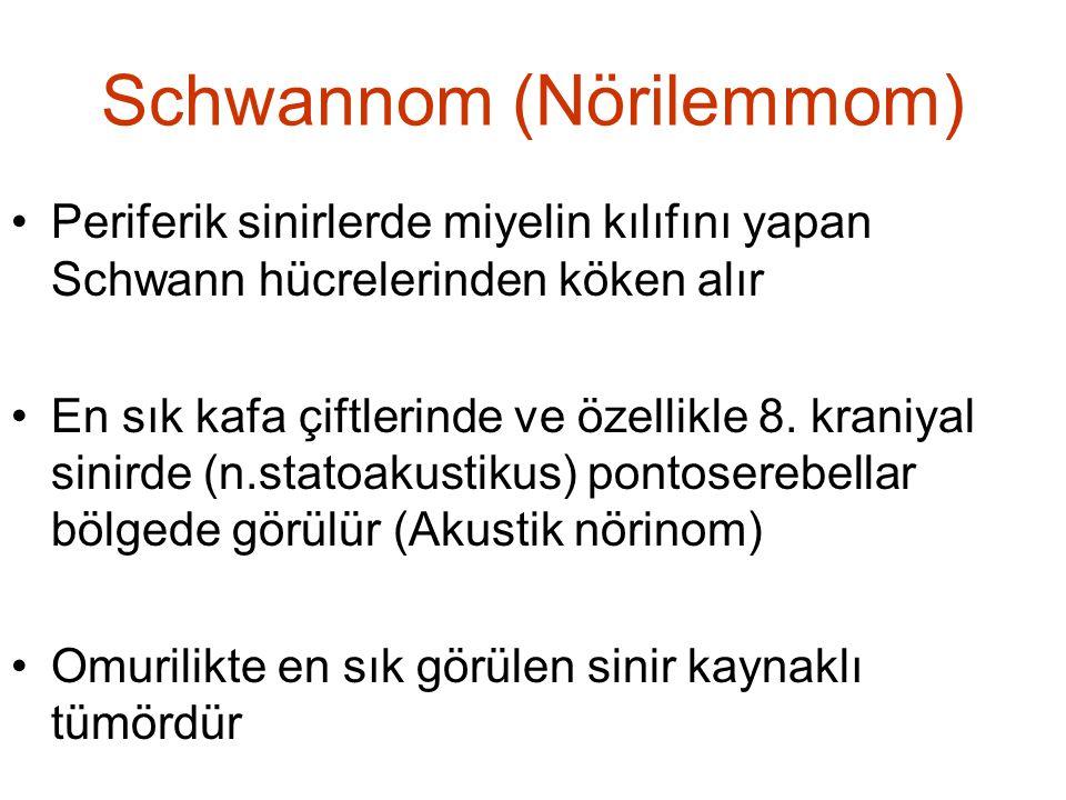 Schwannom (Nörilemmom) •Periferik sinirlerde miyelin kılıfını yapan Schwann hücrelerinden köken alır •En sık kafa çiftlerinde ve özellikle 8. kraniyal