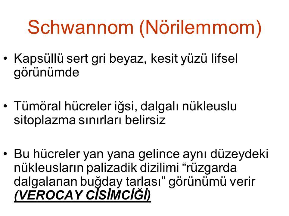 Schwannom (Nörilemmom) •Kapsüllü sert gri beyaz, kesit yüzü lifsel görünümde •Tümöral hücreler iğsi, dalgalı nükleuslu sitoplazma sınırları belirsiz •