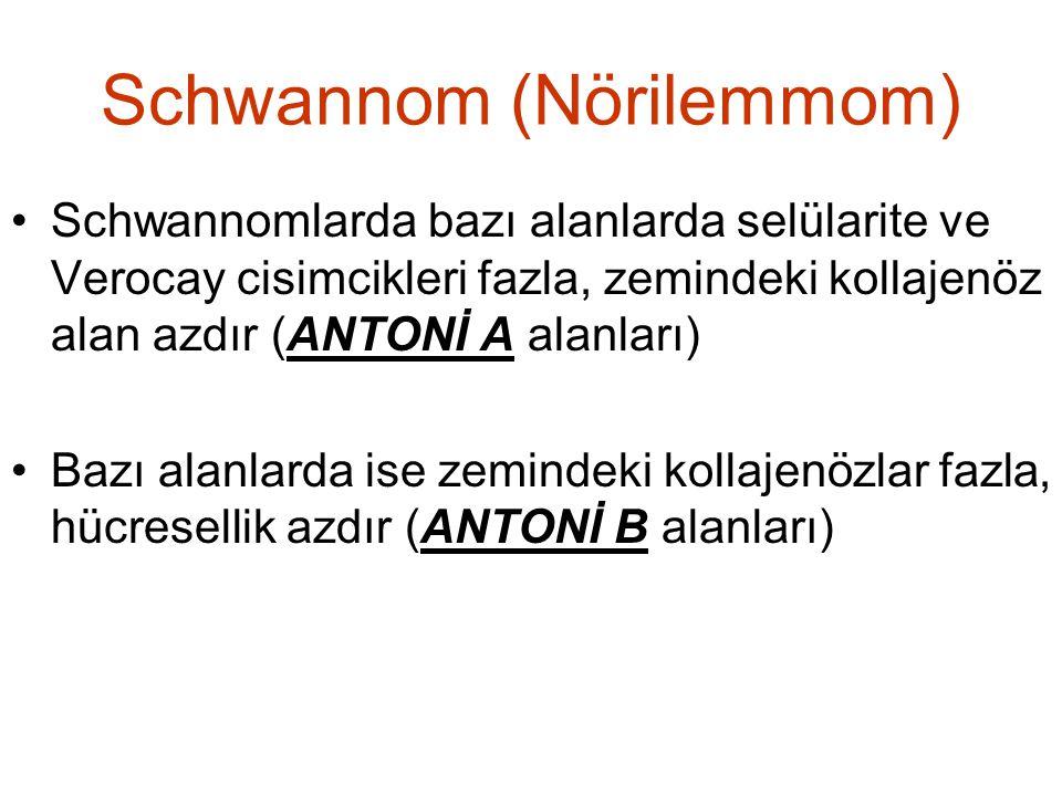 Schwannom (Nörilemmom) •Schwannomlarda bazı alanlarda selülarite ve Verocay cisimcikleri fazla, zemindeki kollajenöz alan azdır (ANTONİ A alanları) •B