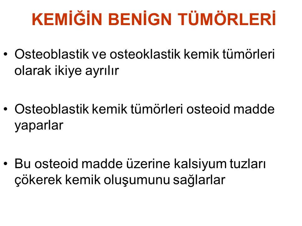 KEMİĞİN BENİGN TÜMÖRLERİ •Osteoblastik ve osteoklastik kemik tümörleri olarak ikiye ayrılır •Osteoblastik kemik tümörleri osteoid madde yaparlar •Bu o