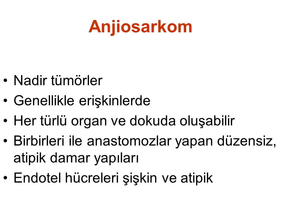 Anjiosarkom •Nadir tümörler •Genellikle erişkinlerde •Her türlü organ ve dokuda oluşabilir •Birbirleri ile anastomozlar yapan düzensiz, atipik damar y