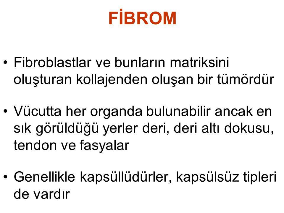 FİBROM •Uzun, dar koyu nükleuslu fibroblastlar •Hücreler arasında yoğun kollajen birikimleri •Düzensiz dağılımlı, birbirini çaprazlayan fibroblast toplulukları