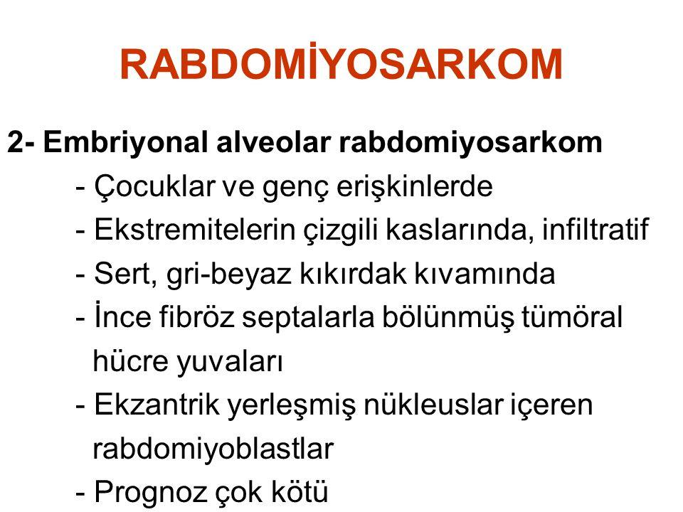 RABDOMİYOSARKOM 2- Embriyonal alveolar rabdomiyosarkom - Çocuklar ve genç erişkinlerde - Ekstremitelerin çizgili kaslarında, infiltratif - Sert, gri-b