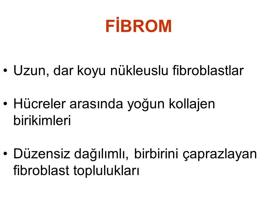 FİBROM •Uzun, dar koyu nükleuslu fibroblastlar •Hücreler arasında yoğun kollajen birikimleri •Düzensiz dağılımlı, birbirini çaprazlayan fibroblast top