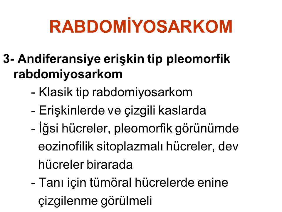 RABDOMİYOSARKOM 3- Andiferansiye erişkin tip pleomorfik rabdomiyosarkom - Klasik tip rabdomiyosarkom - Erişkinlerde ve çizgili kaslarda - İğsi hücrele