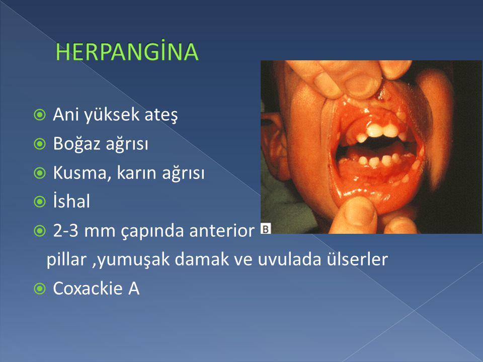  Ani yüksek ateş  Boğaz ağrısı  Kusma, karın ağrısı  İshal  2-3 mm çapında anterior pillar,yumuşak damak ve uvulada ülserler  Coxackie A
