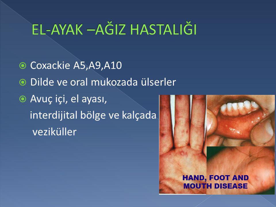  Coxackie A5,A9,A10  Dilde ve oral mukozada ülserler  Avuç içi, el ayası, interdijital bölge ve kalçada veziküller