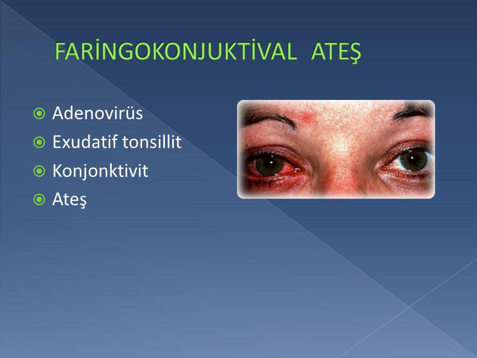  Adenovirüs  Exudatif tonsillit  Konjonktivit  Ateş