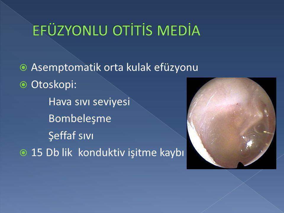  Asemptomatik orta kulak efüzyonu  Otoskopi: Hava sıvı seviyesi Bombeleşme Şeffaf sıvı  15 Db lik konduktiv işitme kaybı