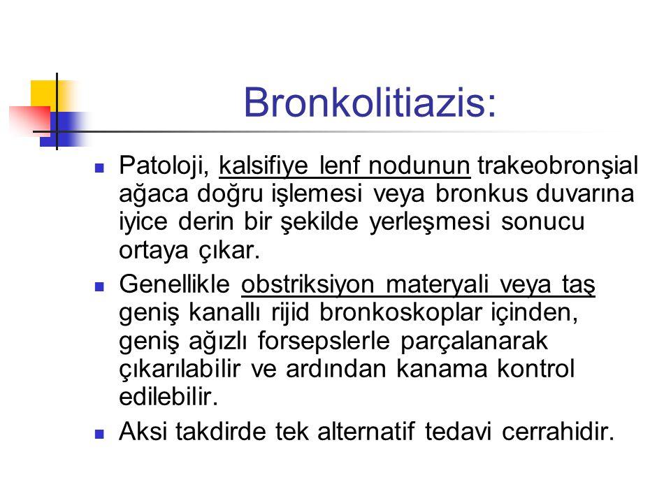 Bronkolitiazis:  Patoloji, kalsifiye lenf nodunun trakeobronşial ağaca doğru işlemesi veya bronkus duvarına iyice derin bir şekilde yerleşmesi sonucu