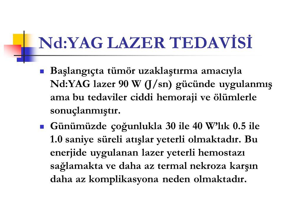 Nd:YAG LAZER TEDAVİSİ  Başlangıçta tümör uzaklaştırma amacıyla Nd:YAG lazer 90 W (J/sn) gücünde uygulanmış ama bu tedaviler ciddi hemoraji ve ölümler
