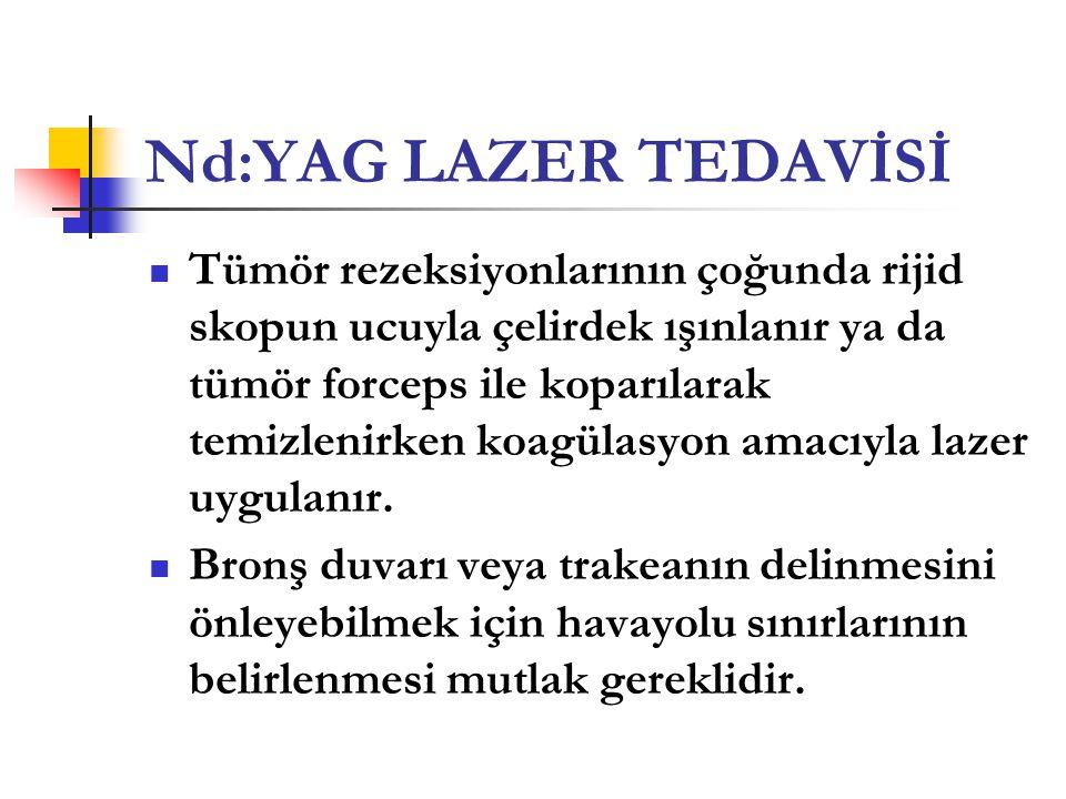Nd:YAG LAZER TEDAVİSİ  Tümör rezeksiyonlarının çoğunda rijid skopun ucuyla çelirdek ışınlanır ya da tümör forceps ile koparılarak temizlenirken koagü