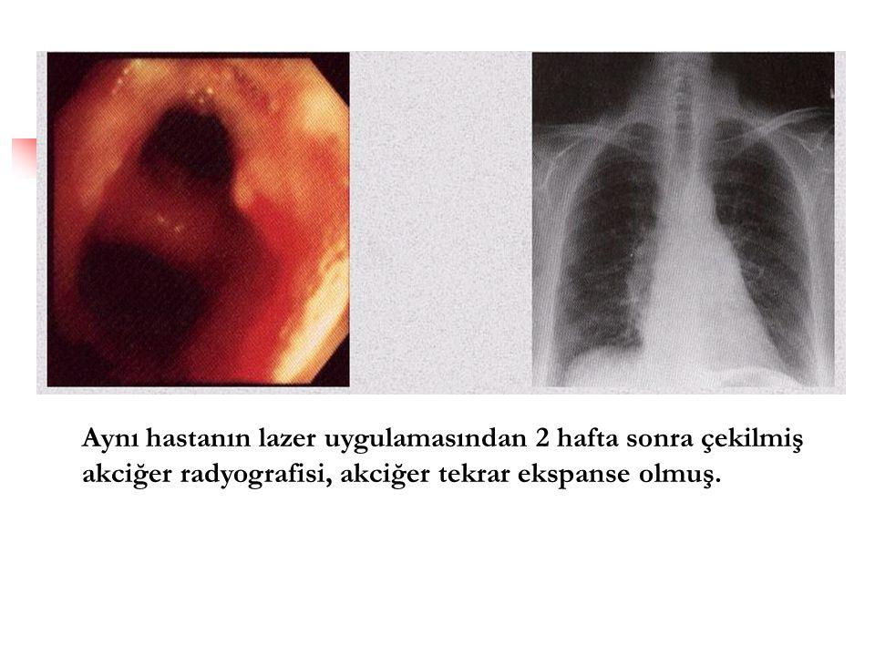 Aynı hastanın lazer uygulamasından 2 hafta sonra çekilmiş akciğer radyografisi, akciğer tekrar ekspanse olmuş.