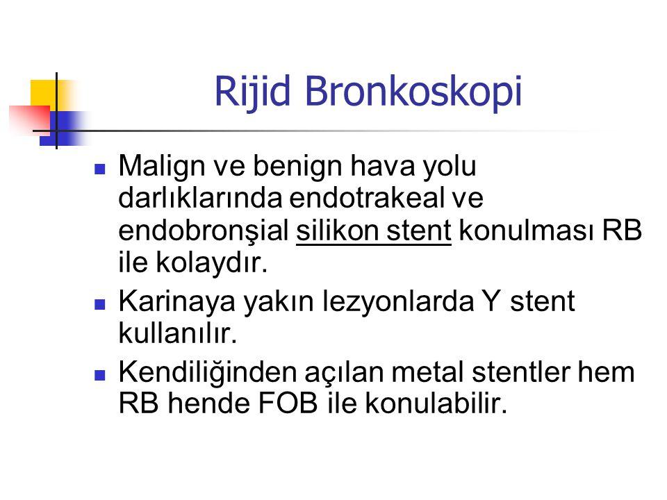 Rijid Bronkoskopi  Malign ve benign hava yolu darlıklarında endotrakeal ve endobronşial silikon stent konulması RB ile kolaydır.  Karinaya yakın lez