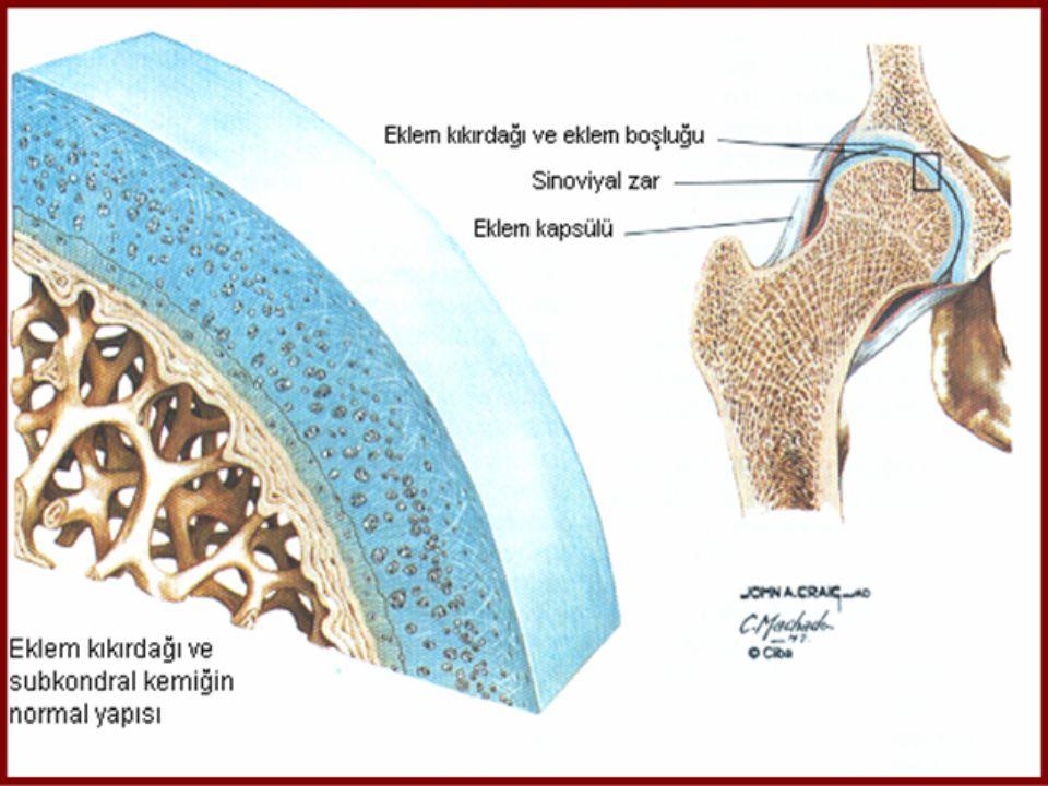 OSTEOARTRİT  EBURNASYON;  Kıkırdağın aşınması ve altında bulunan kemik dokuda skleroz ( subkondral skleroz)  SKLEROZ;  Kemikte lokal mekanik streslere bağlı olarak oluşan proliferatif yanıt  OSTEOFİT;  Eklem kenarlarında bulunan kıkırdağın dışarı doğru büyümesi ve sonra kemikleşmesi ile oluşan yeni kemik