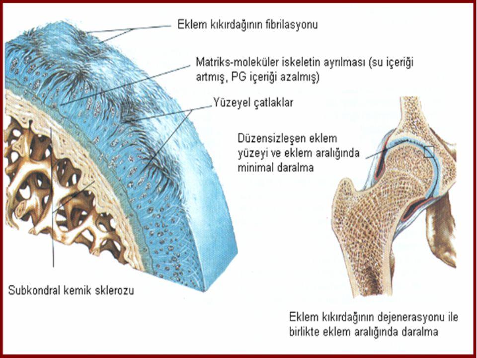 SEKONDER OA  Anatomik •Femoral epifizin kayması •Epifizyel displaziler •Legge-Perthe hastalığı •Kalçanın doğumsal çıkığı •Bacak boyu farklılığı •Hipermobilite sendromları