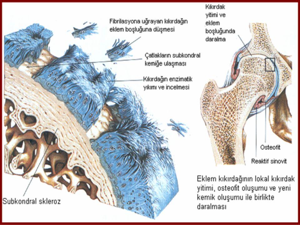 OSTEOARTRİT  Lokal kıkırdak kaybı eklem asimetrisine yol açmakta malalignment oluşmakta  Normalden farklı yerlerde kemiğin stres altında kalması kemikte skleroz ve aşınmalara yol açmakta