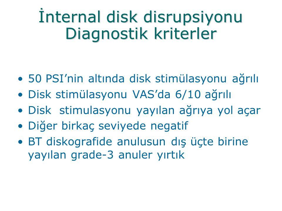 İnternal disk disrupsiyonu Diagnostik kriterler •50 PSI'nin altında disk stimülasyonu ağrılı •Disk stimülasyonu VAS'da 6/10 ağrılı •Disk stimulasyonu