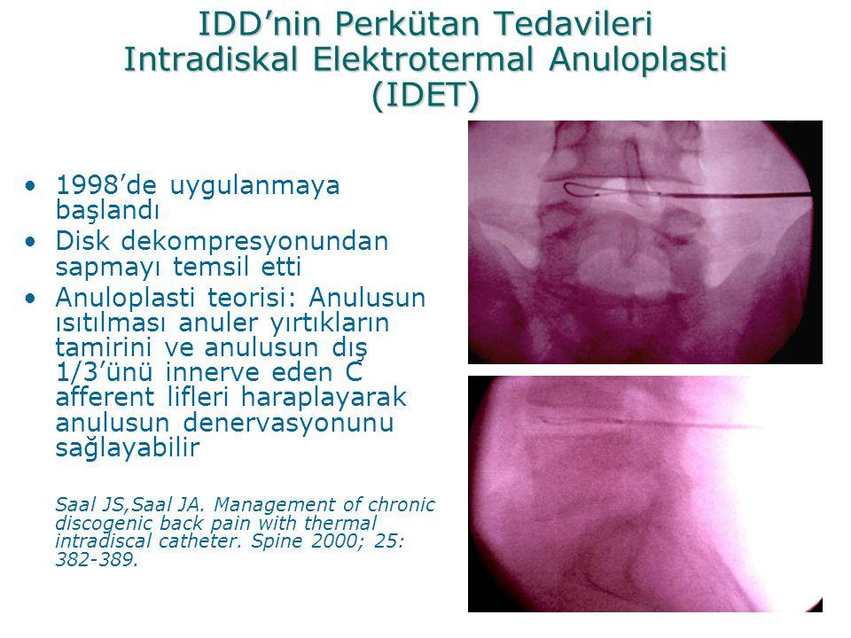 IDD'nin Perkütan Tedavileri Intradiskal Elektrotermal Anuloplasti (IDET) •1998'de uygulanmaya başlandı •Disk dekompresyonundan sapmayı temsil etti •An