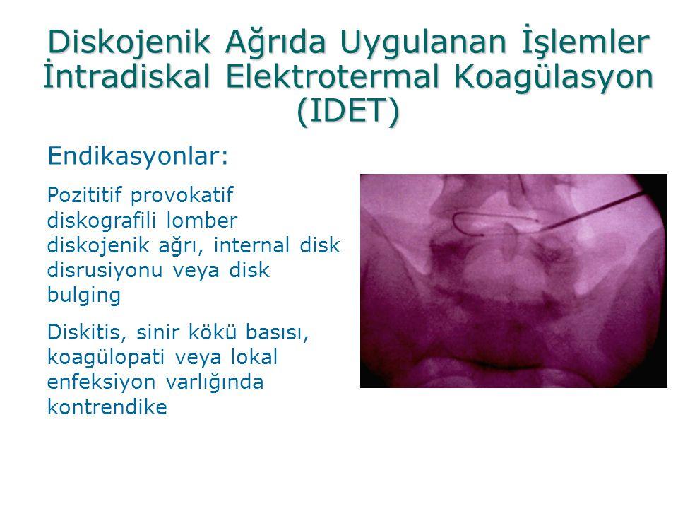 Diskojenik Ağrıda Uygulanan İşlemler İntradiskal Elektrotermal Koagülasyon (IDET) Endikasyonlar: Pozititif provokatif diskografili lomber diskojenik a