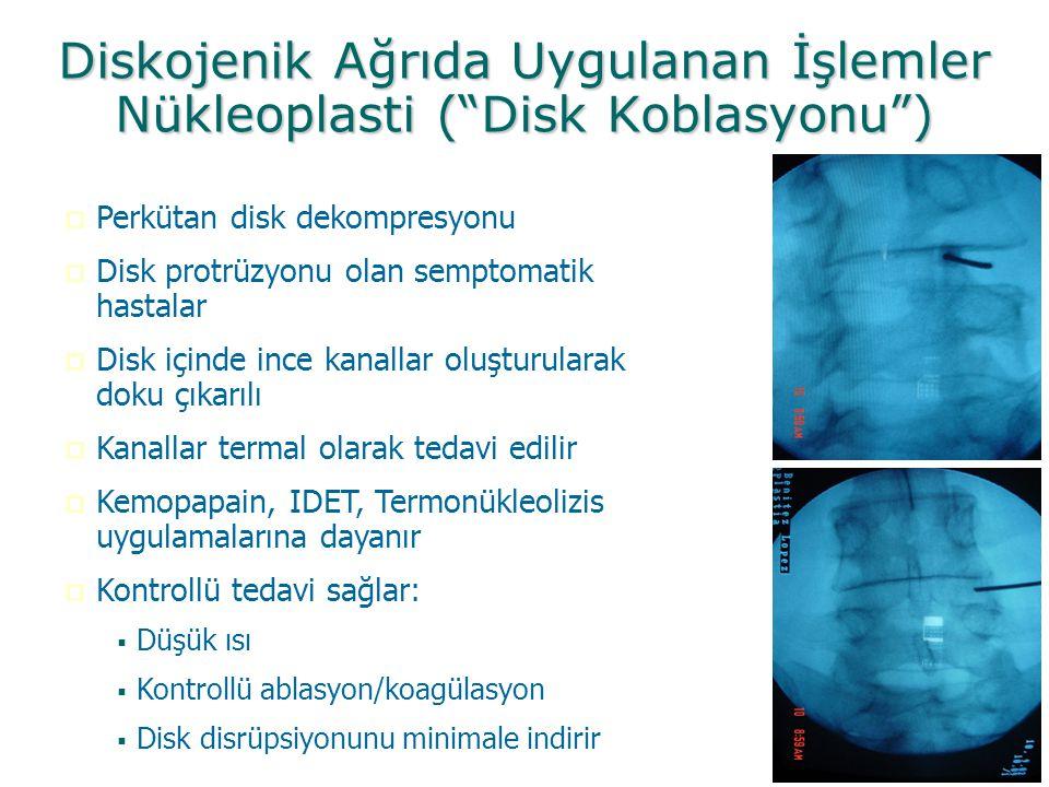 """Diskojenik Ağrıda Uygulanan İşlemler Nükleoplasti (""""Disk Koblasyonu"""")  Perkütan disk dekompresyonu  Disk protrüzyonu olan semptomatik hastalar  Dis"""