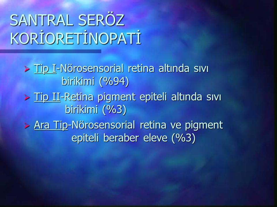 SANTRAL SERÖZ KORİORETİNOPATİ  Tip I-Nörosensorial retina altında sıvı birikimi (%94)  Tip II-Retina pigment epiteli altında sıvı birikimi (%3)  Ara Tip-Nörosensorial retina ve pigment epiteli beraber eleve (%3)