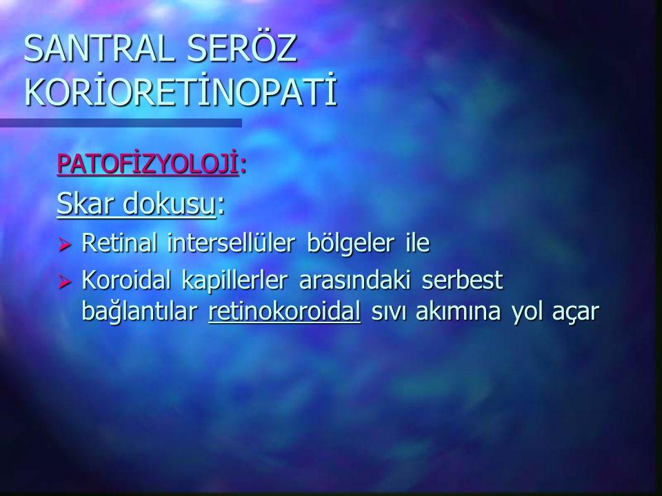SANTRAL SERÖZ KORİORETİNOPATİ PATOFİZYOLOJİ: Skar dokusu:  Retinal intersellüler bölgeler ile  Koroidal kapillerler arasındaki serbest bağlantılar retinokoroidal sıvı akımına yol açar