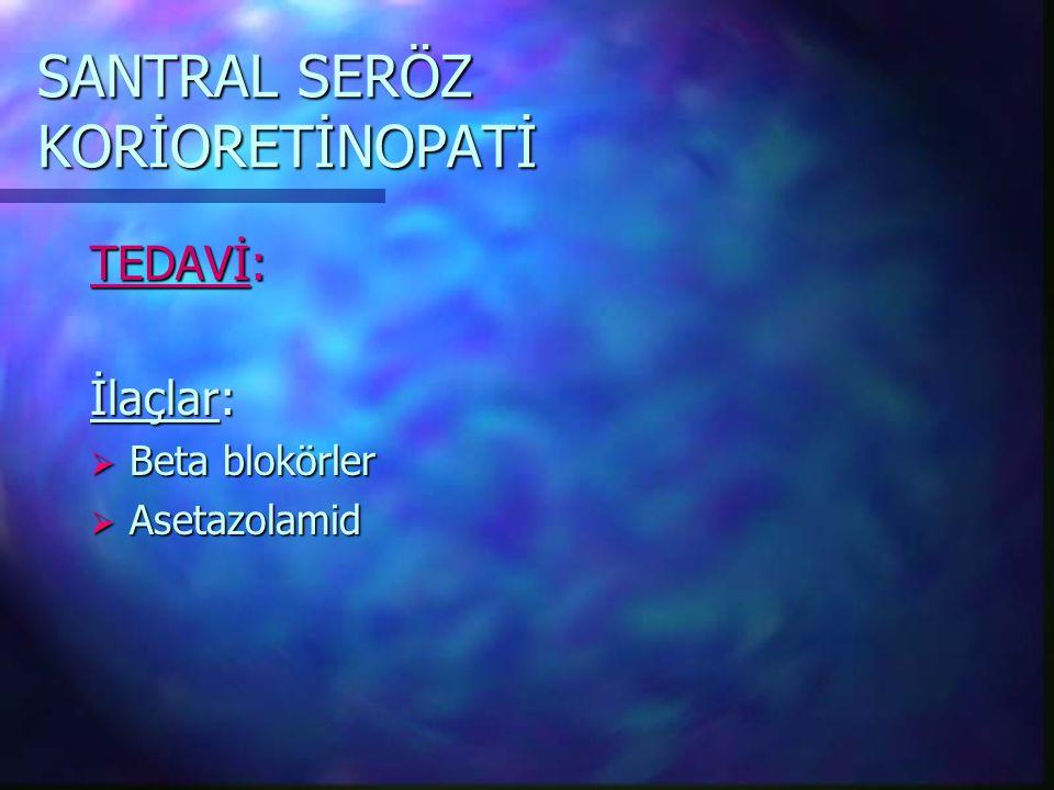 SANTRAL SERÖZ KORİORETİNOPATİ TEDAVİ: İlaçlar:  Beta blokörler  Asetazolamid