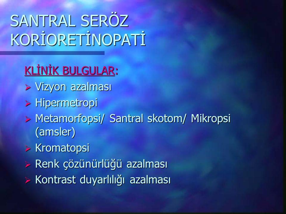 SANTRAL SERÖZ KORİORETİNOPATİ KLİNİK BULGULAR:  Vizyon azalması  Hipermetropi  Metamorfopsi/ Santral skotom/ Mikropsi (amsler)  Kromatopsi  Renk çözünürlüğü azalması  Kontrast duyarlılığı azalması