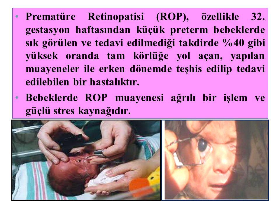 •Prematüre Retinopatisi (ROP), özellikle 32. gestasyon haftasından küçük preterm bebeklerde sık görülen ve tedavi edilmediği takdirde %40 gibi yüksek