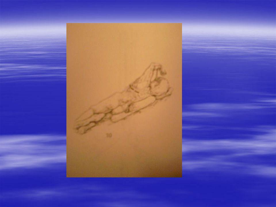 İnsizyon Skapula medial kısmı ile spinoz çıkıntıların arasından başlayıp, skapula açısının 2-3 cm altından geçip, erkekte; meme başının 3-4 cm altında midaksiller veya ant aksiller hatta, kadında; aynı düzlemde ama meme alt kıvrımında sonlanan ''tembel S'' olarak tariflenen şekilde yapılmalıdır.