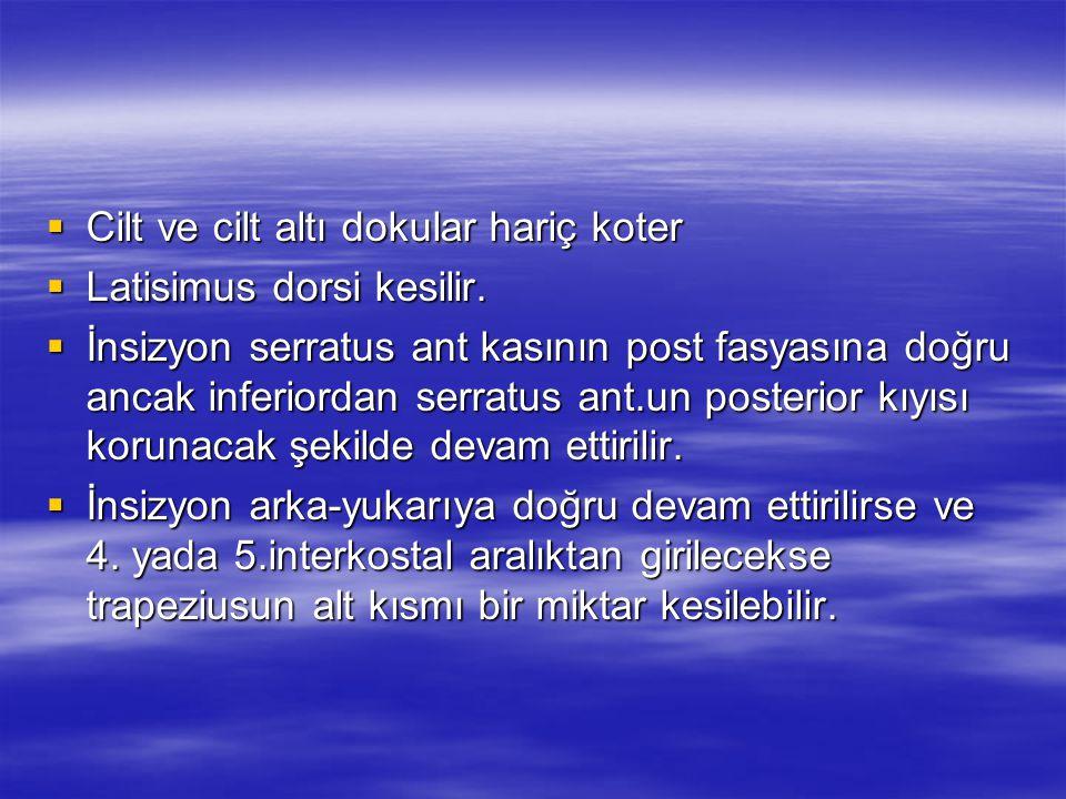 ANTERİOR MEDİASTİNOTOMİ İlk yayın Stemmer ve ark.