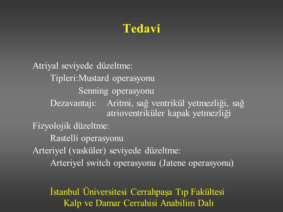 İstanbul Üniversitesi Cerrahpaşa Tıp Fakültesi Kalp ve Damar Cerrahisi Anabilim Dalı Tedavi Atriyal seviyede düzeltme: Tipleri:Mustard operasyonu Senn