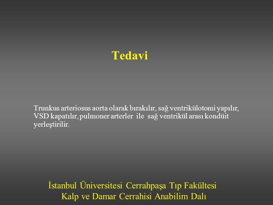 İstanbul Üniversitesi Cerrahpaşa Tıp Fakültesi Kalp ve Damar Cerrahisi Anabilim Dalı Tedavi Trunkus arteriosus aorta olarak bırakılır, sağ ventrikülot