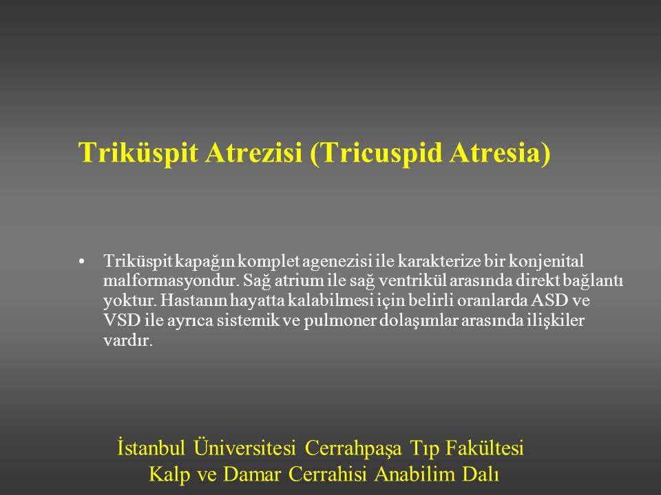 İstanbul Üniversitesi Cerrahpaşa Tıp Fakültesi Kalp ve Damar Cerrahisi Anabilim Dalı Triküspit Atrezisi (Tricuspid Atresia) •Triküspit kapağın komplet