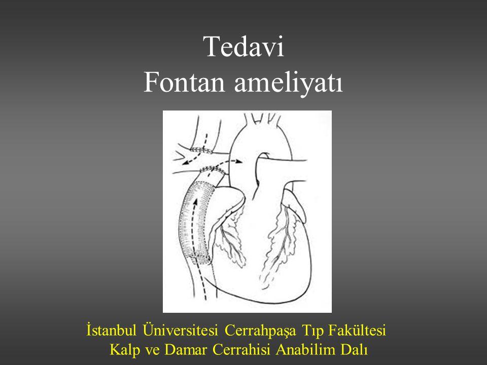 İstanbul Üniversitesi Cerrahpaşa Tıp Fakültesi Kalp ve Damar Cerrahisi Anabilim Dalı Tedavi Fontan ameliyatı