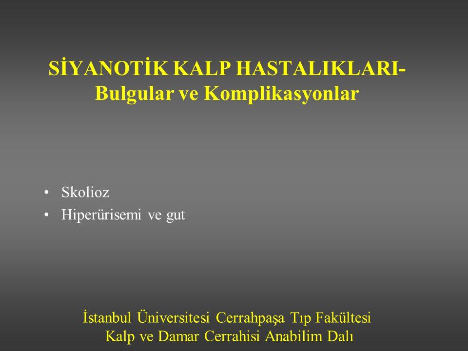 İstanbul Üniversitesi Cerrahpaşa Tıp Fakültesi Kalp ve Damar Cerrahisi Anabilim Dalı SİYANOTİK KALP HASTALIKLARI- Bulgular ve Komplikasyonlar •Skolioz