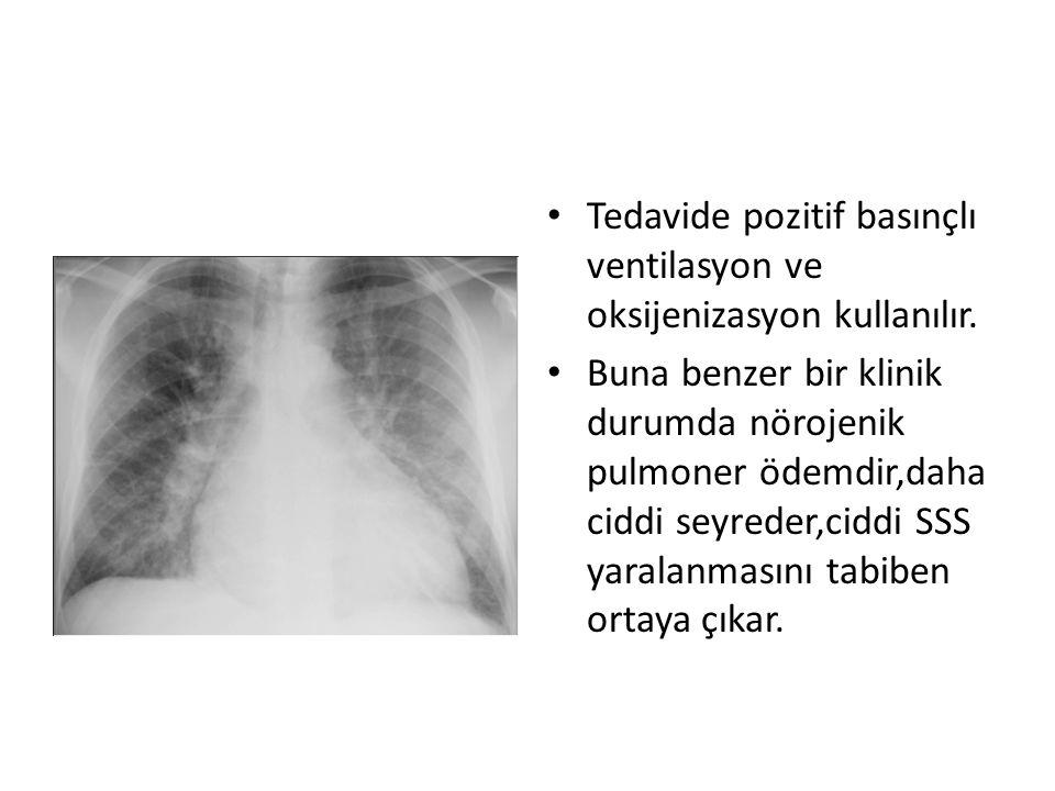 • Tedavide pozitif basınçlı ventilasyon ve oksijenizasyon kullanılır. • Buna benzer bir klinik durumda nörojenik pulmoner ödemdir,daha ciddi seyreder,