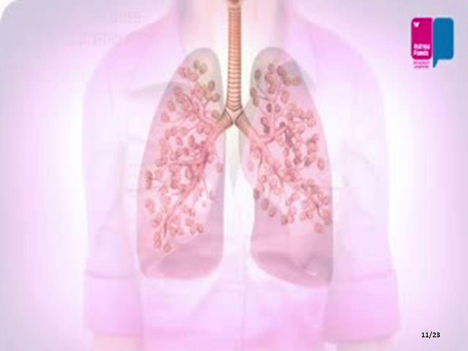 BRONŞLAR Soluk borusu akciğerlerle birleşirken iki kola ayrılır.