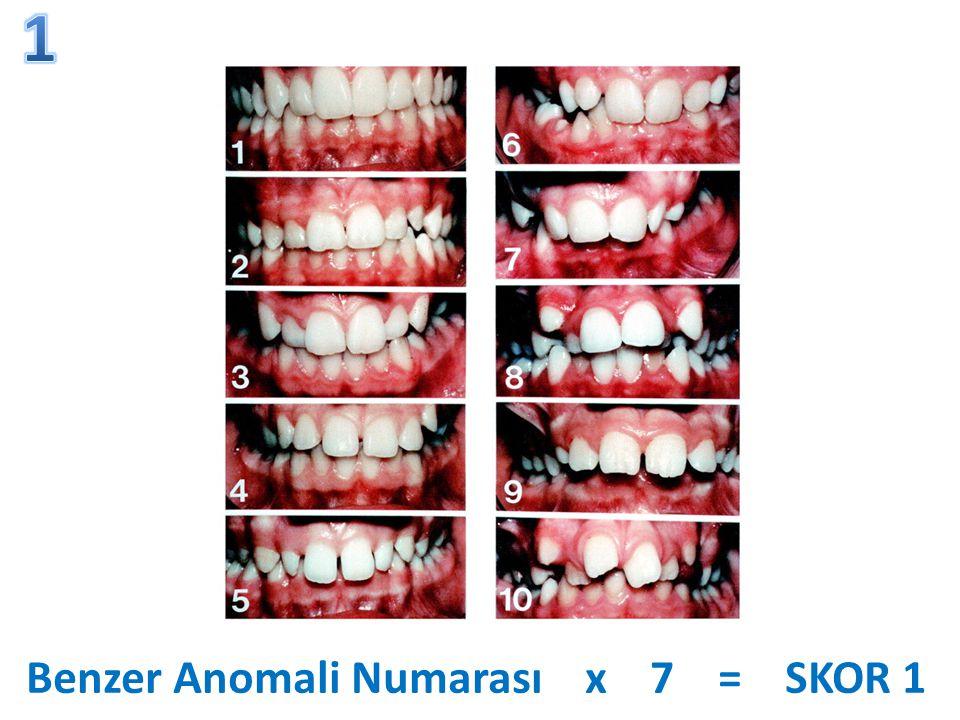 Benzer Anomali Numarası x 7 = SKOR 1
