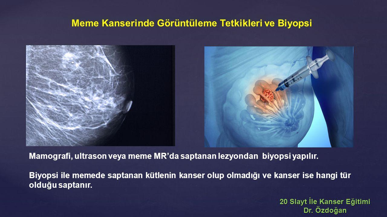 Mamografi, ultrason veya meme MR'da saptanan lezyondan biyopsi yapılır. Biyopsi ile memede saptanan kütlenin kanser olup olmadığı ve kanser ise hangi