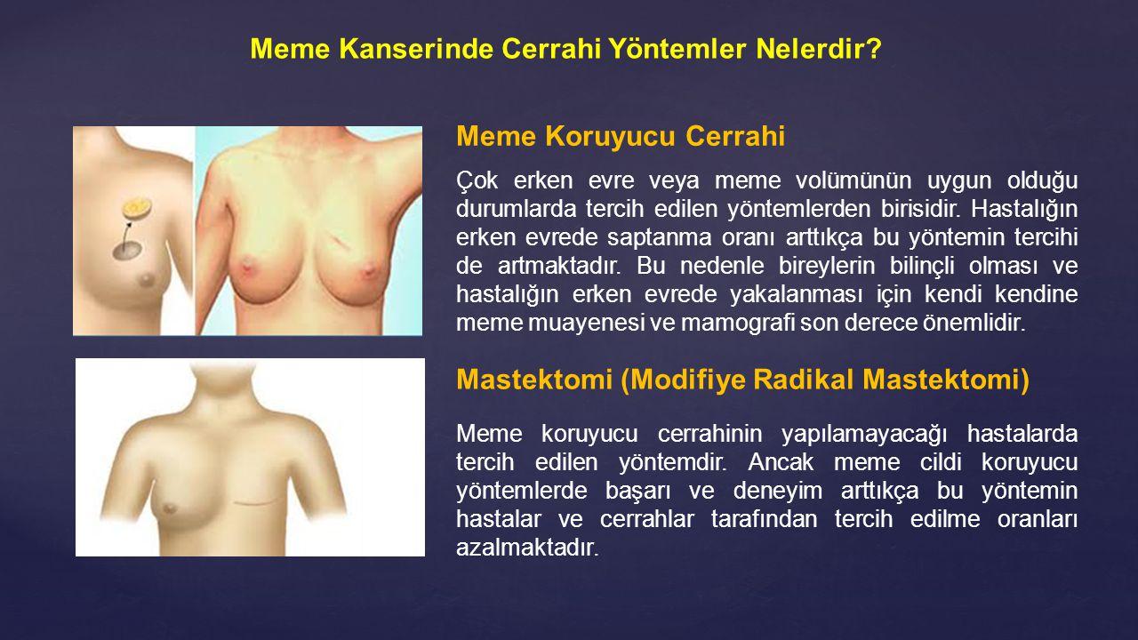 Mastektomi (Modifiye Radikal Mastektomi) Meme koruyucu cerrahinin yapılamayacağı hastalarda tercih edilen yöntemdir. Ancak meme cildi koruyucu yönteml