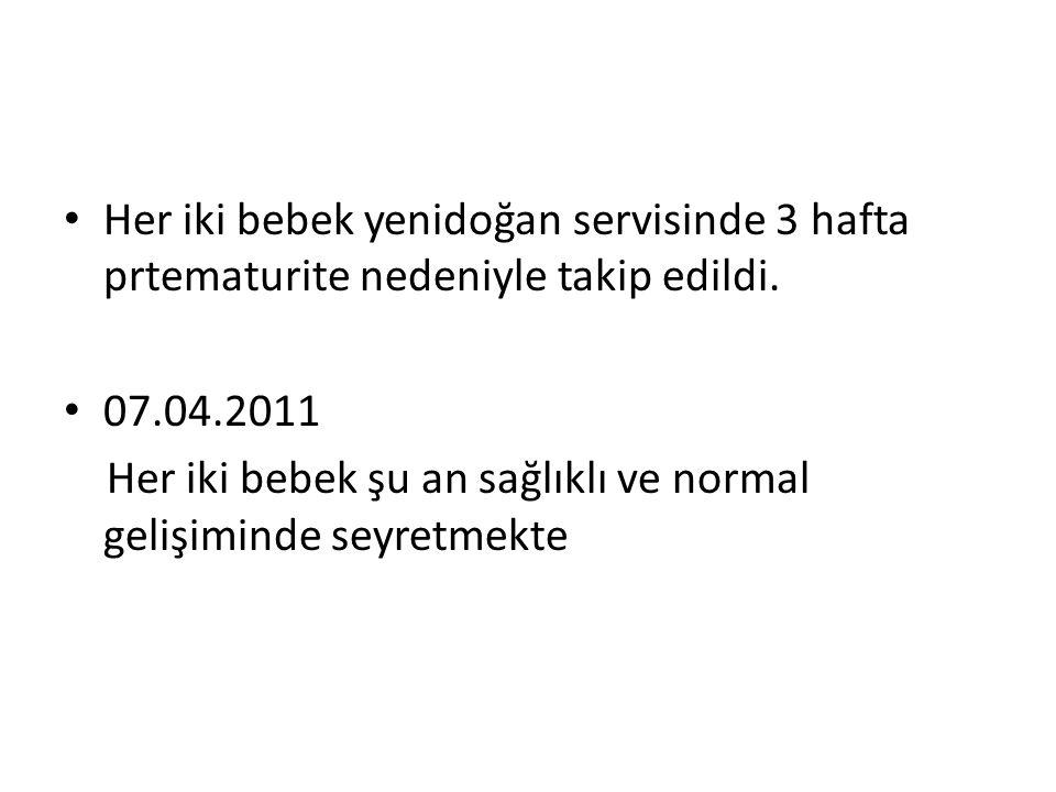 • Her iki bebek yenidoğan servisinde 3 hafta prtematurite nedeniyle takip edildi. • 07.04.2011 Her iki bebek şu an sağlıklı ve normal gelişiminde seyr